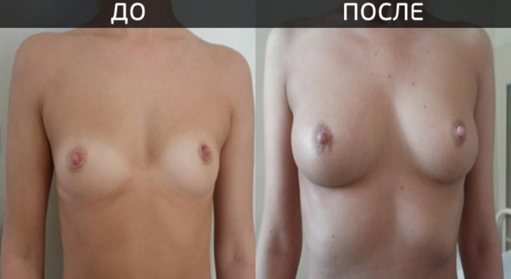 Крем от растяжек на груди животе бедрах для беременных