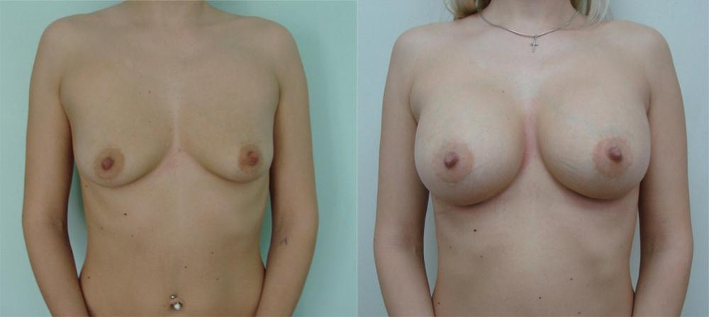 plasticheskaya-hirurgiya-foto-grud