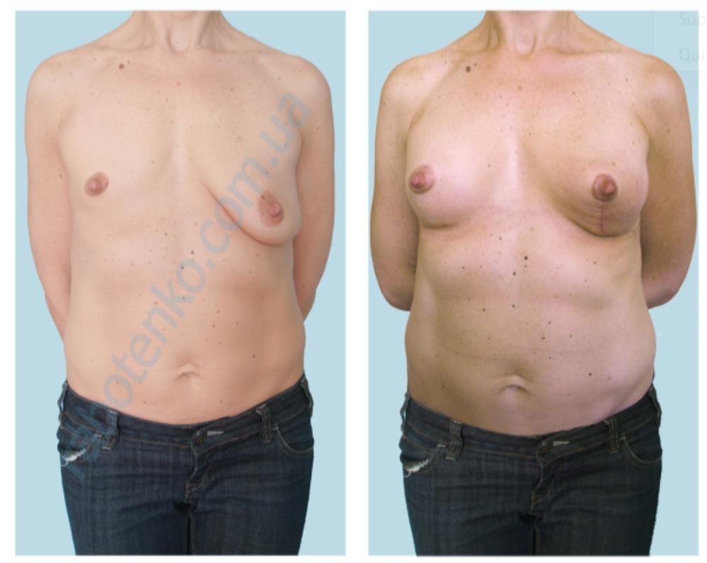 Причина увеличение лимфо узла в груди
