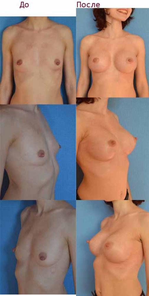 Китайский крем для увеличения груди способ применения