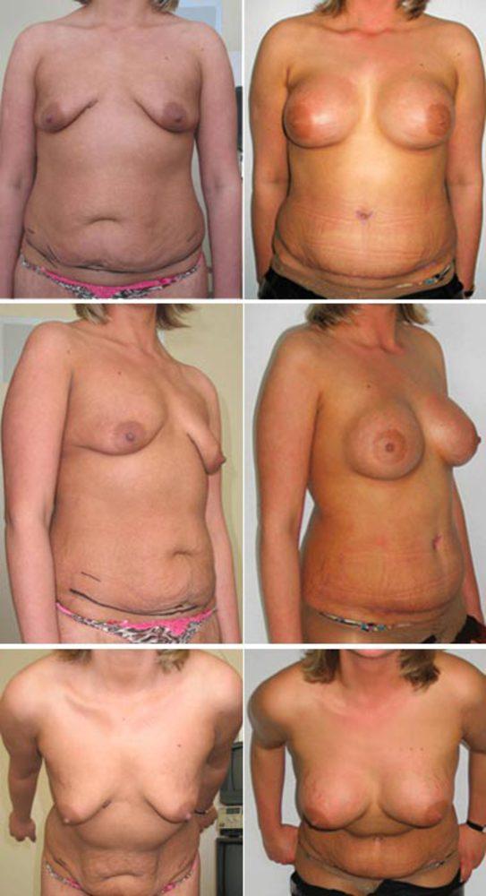 Таблетки для увеличения бюста максибюст