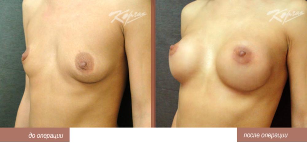 Сок цикуты увеличение груди