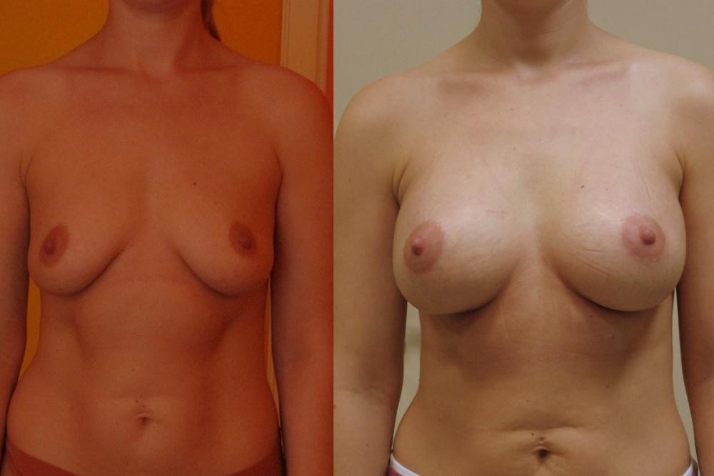 Упражнения для увеличения размера груди