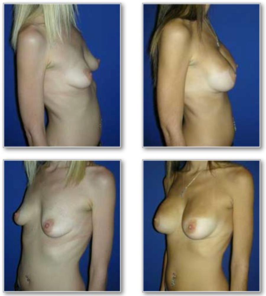 Как увеличить грудь в домашних условиях за неделю на 1 размер