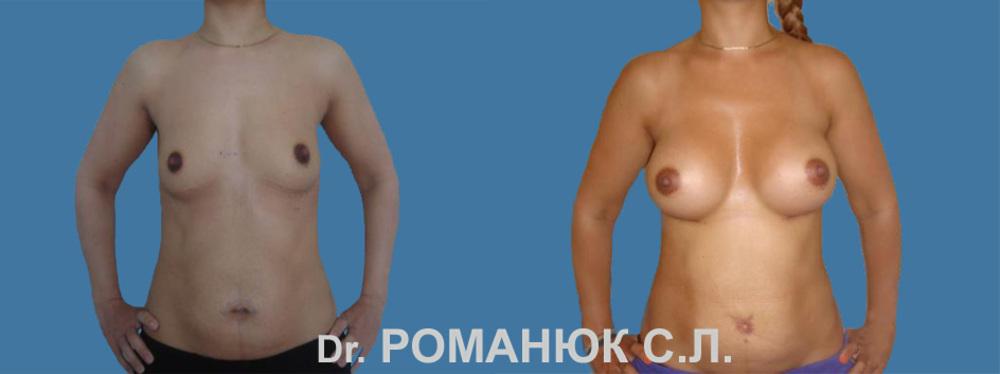 Можно л увеличить грудь с помошью таблеток