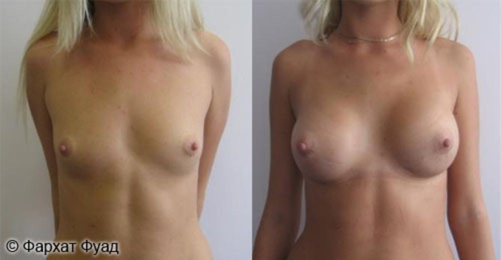 Душица увеличить грудь