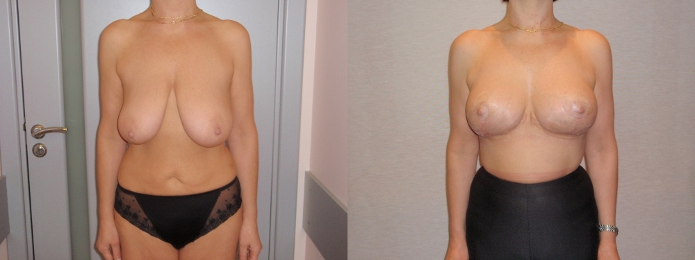 Народные методы быстрого увеличения груди