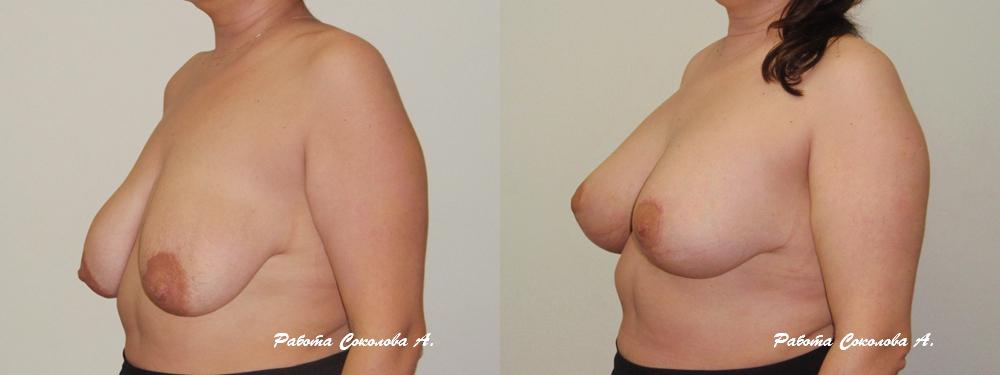 Увеличение груди хирурги форум