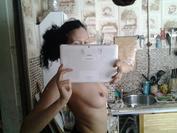 Увеличение груди в ростове-на-дону рыков отзывы