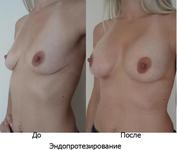 Пластика груди (маммопластика).Пластическая хирургия в