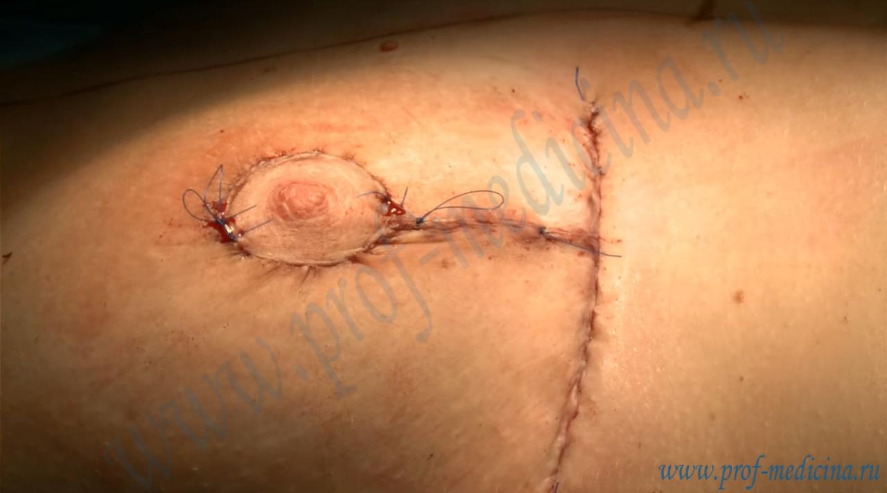 Порно фото шрамы от операций