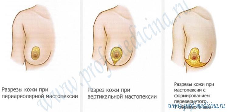 Подтяжка грудных желез после родов