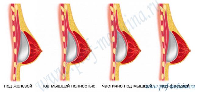 Набережной, или стоимость операции по увеличению грудных желез в казани сменить ТСЖ наоборот