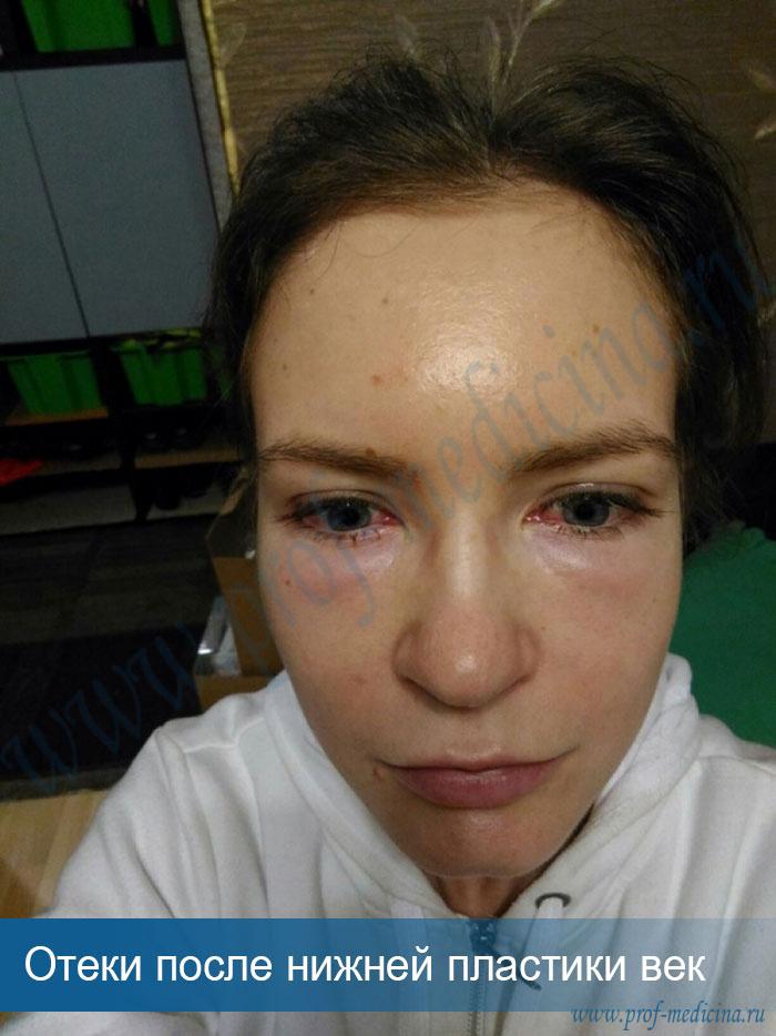 чем снять отек при аллергии на лице