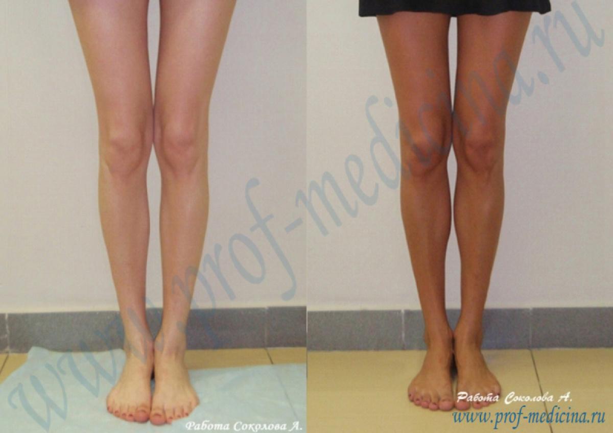 Как похудеть икра на ноге