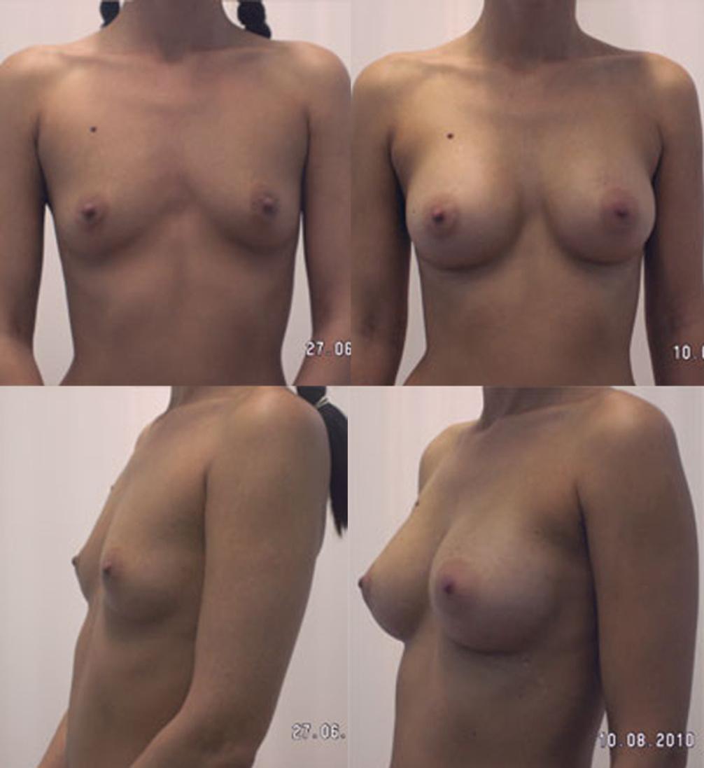 Сосание женской груди 17 фотография