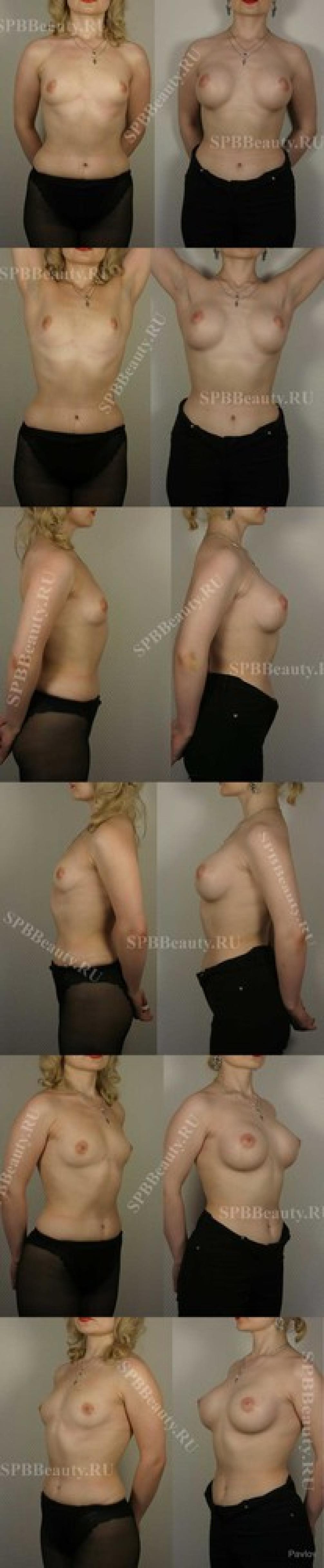 Увеличение груди кредит 2 фотография