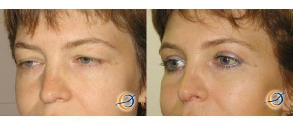 Блефаропластика в уфе отзывы реабилитация фото
