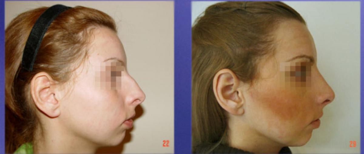 Гюсан с.а. ринопластика фото до и после