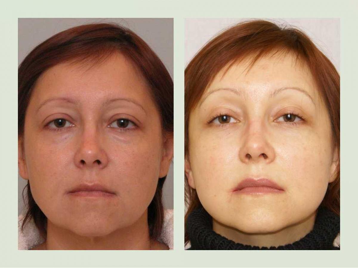 Делала блефаропластику мои фото до и после