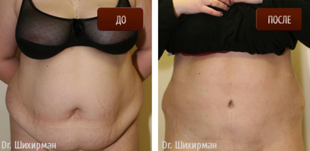 Picture წევრები შემდეგ augmentation ოპერაცია