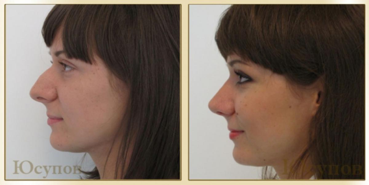 Как сделать себе нос с горбинкой 897