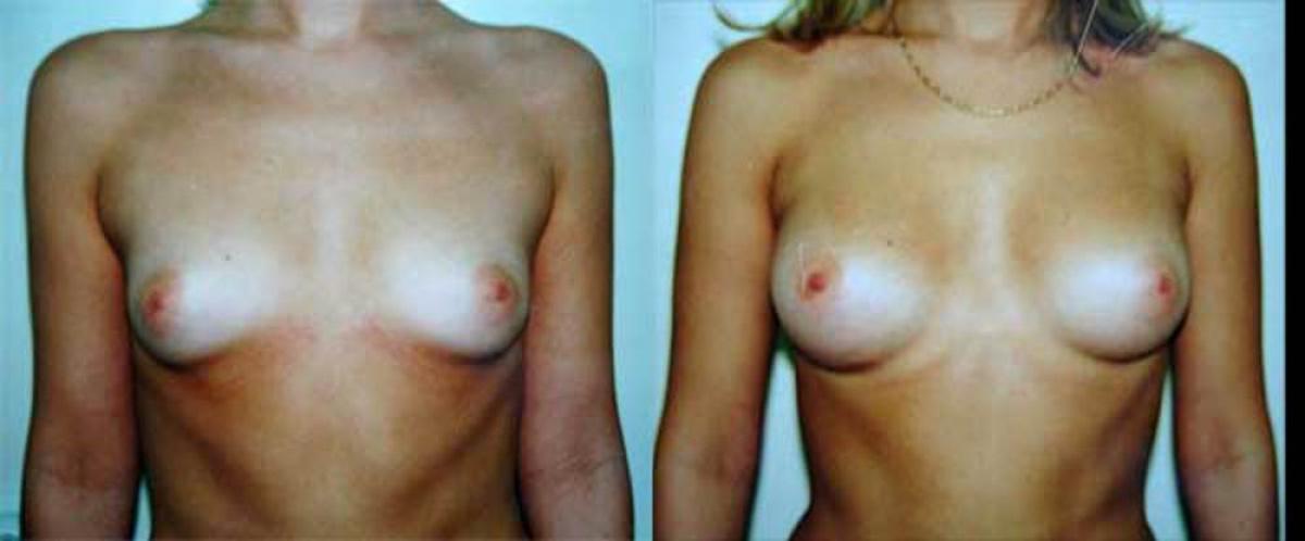 секс после операции на груди