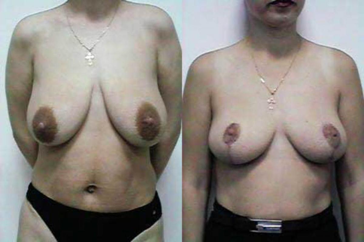 после операции груди секс на