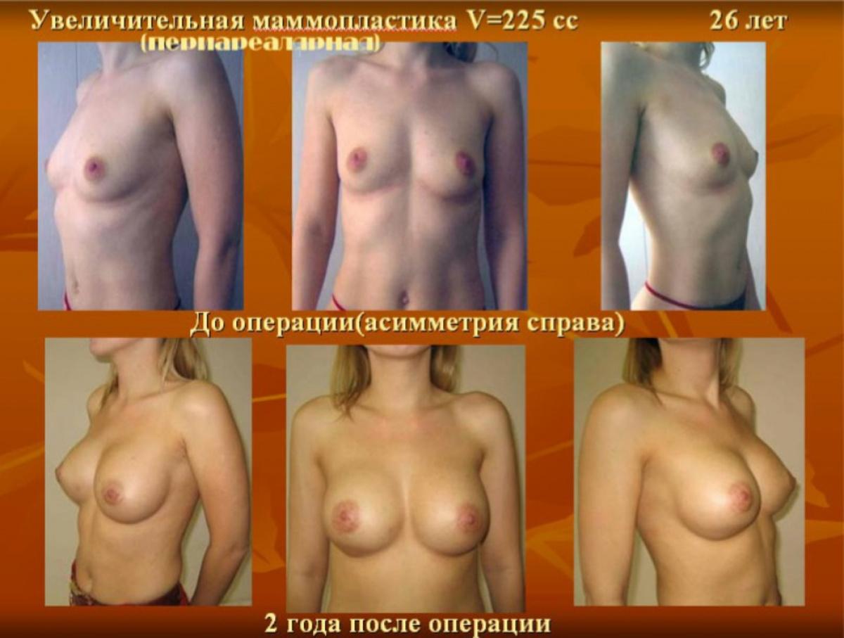 Типы женских сисек картинки, Все типы и формы женской груди на фото по разным 27 фотография