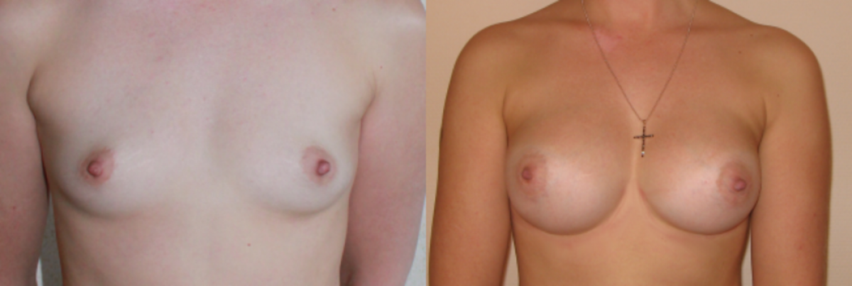 подборка фото разных размеров груди