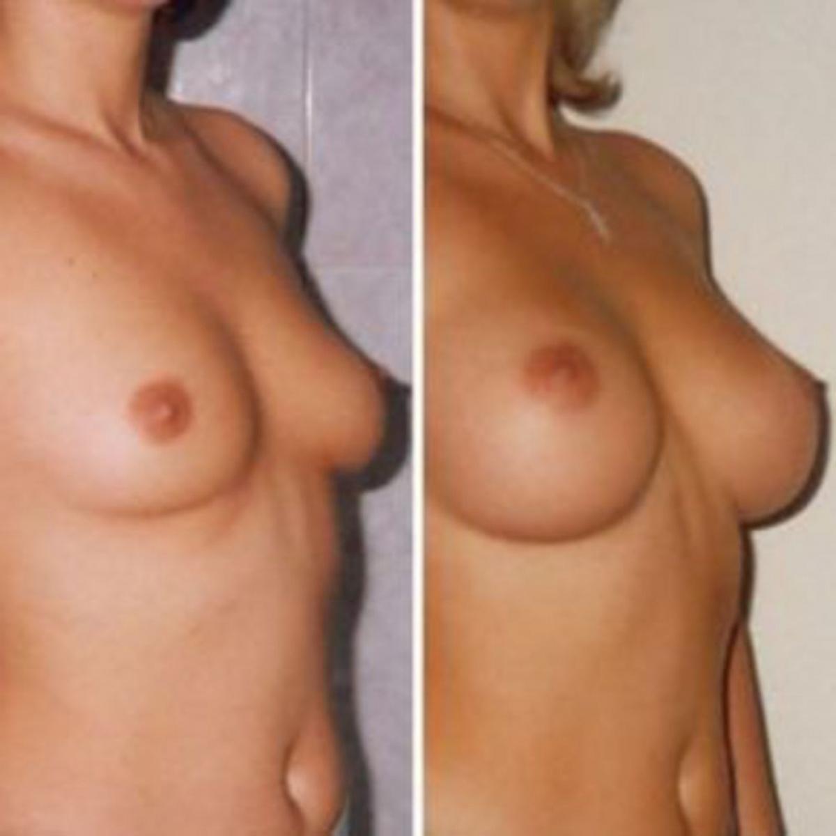 Без фото силикона груди естественной