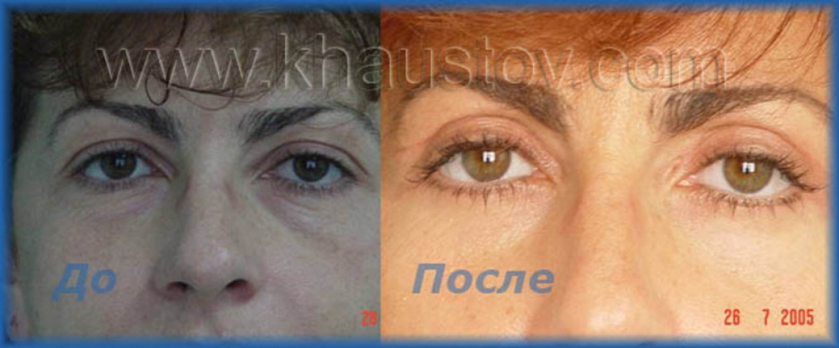 Тянет глаза после блефаропластики