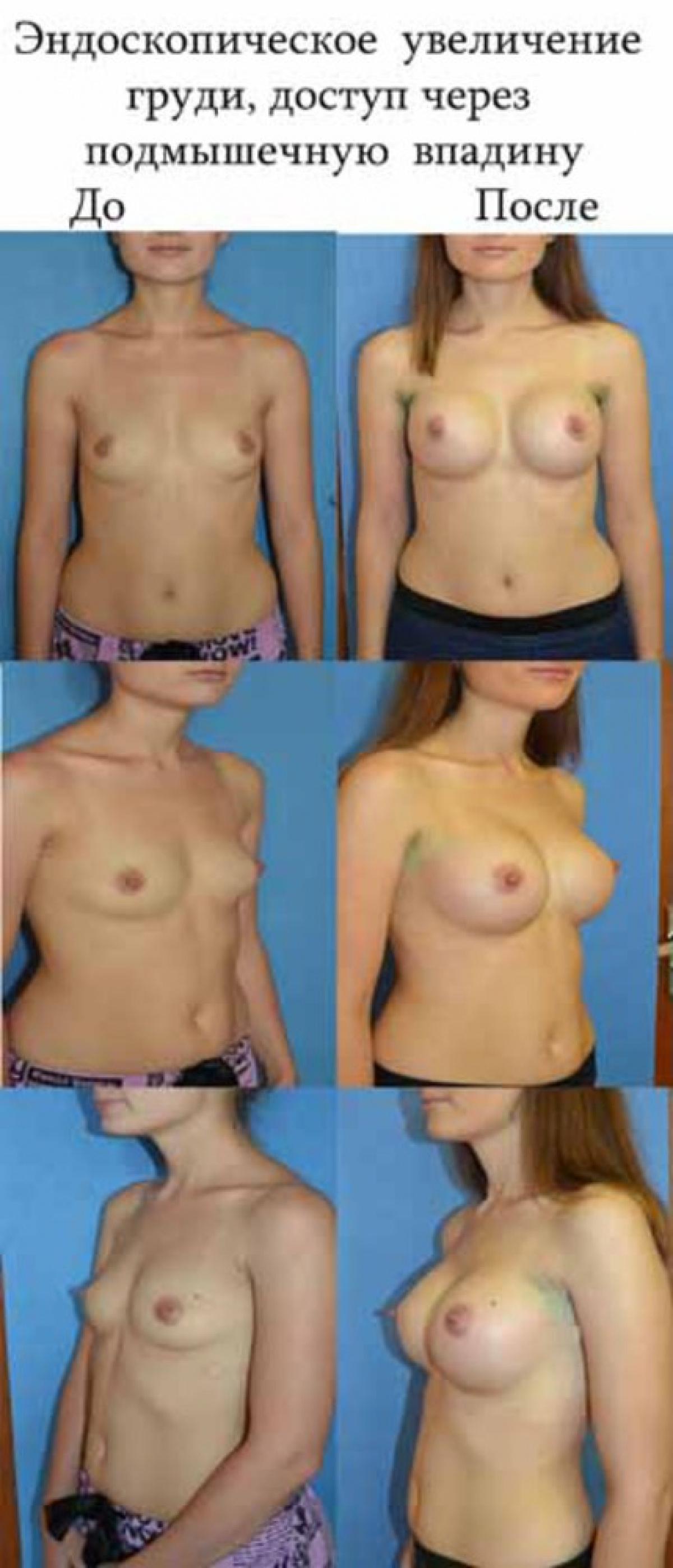 как растет грудь у девушек порно видео