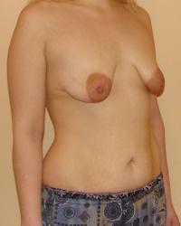 Фото женщин обножающих обвисшую грудь фото 741-695