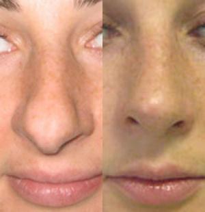 Светлана Иванова сделала нос  Жизнь звезд звезды без макияжа
