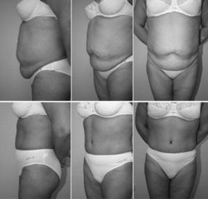 Увеличения груди упражнения