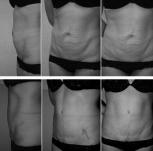Худеть увеличивая грудь