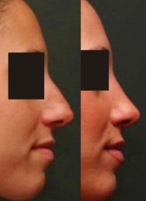 Онлайн ринопластика носа
