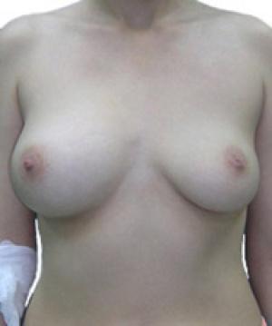 Асимметрия груди у подростка
