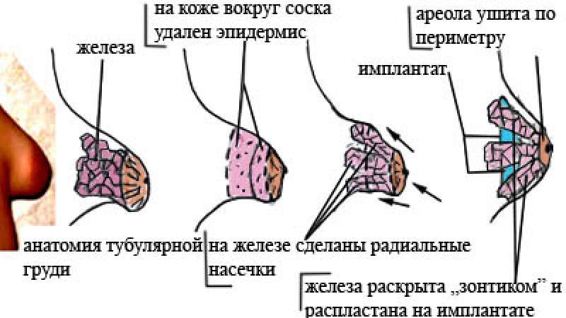 Ткань Ареолярная