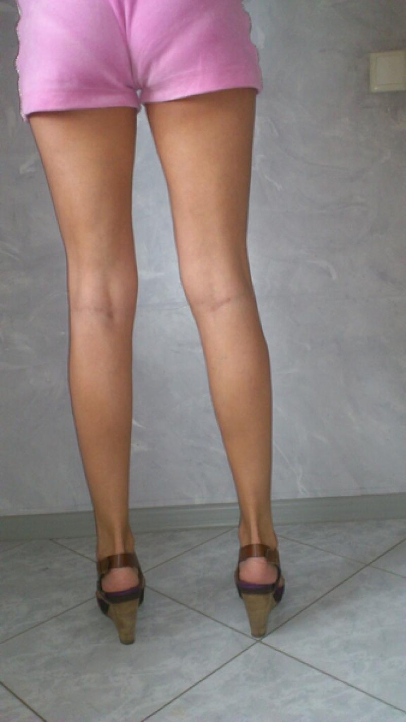 там него кривые ноги вид сзади фото переместился целью