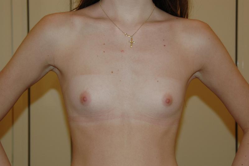 Самая маленькая грудь у девушек
