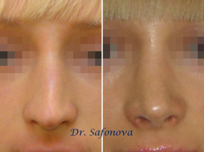 ринопластика кавказского носа фото