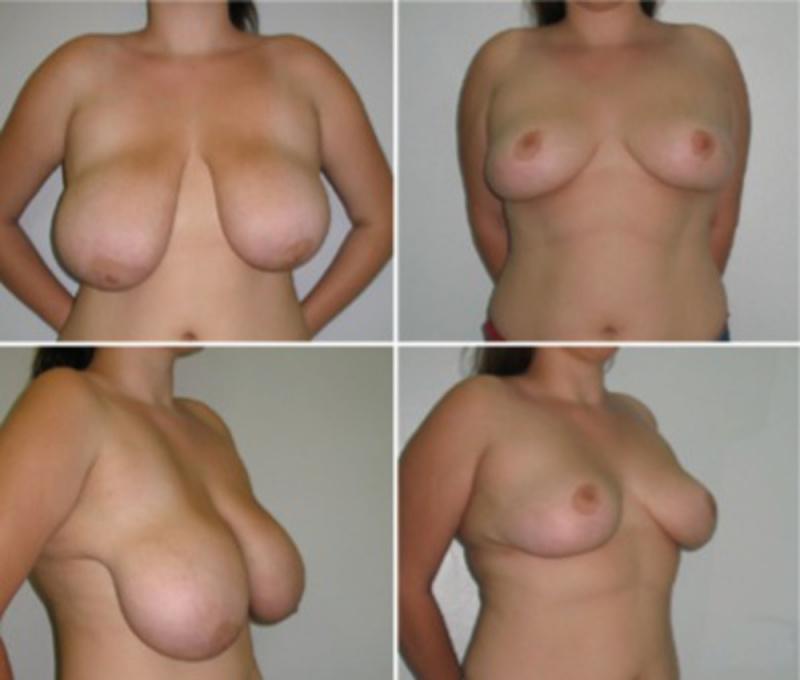 Большие Обнаженные Молочные Железы У Женщин