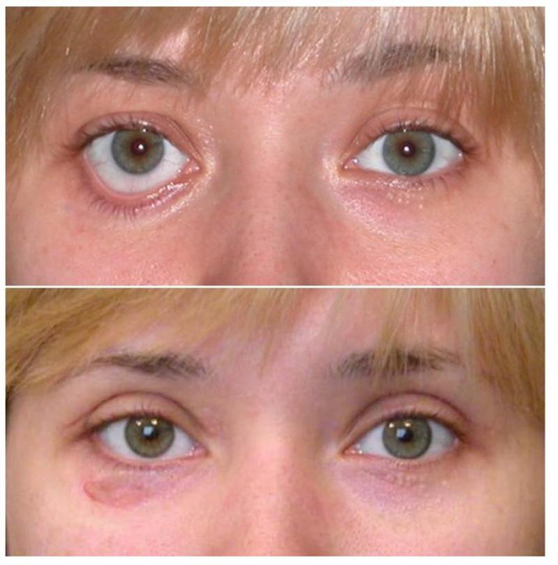 Блефаропластика круглый глаз