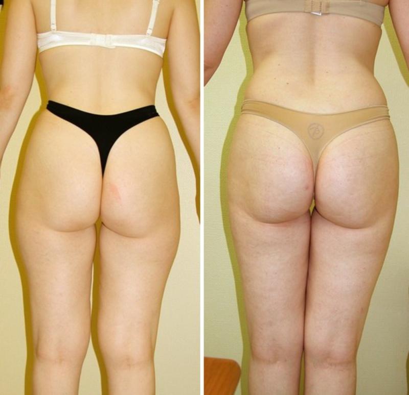 Липосакция спины фото до и после