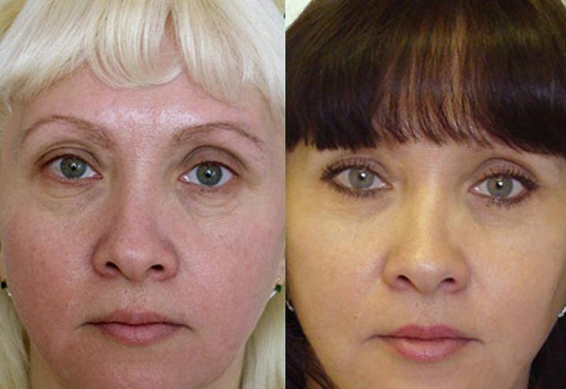 Неудачная верхняя блефаропластика фото до и после