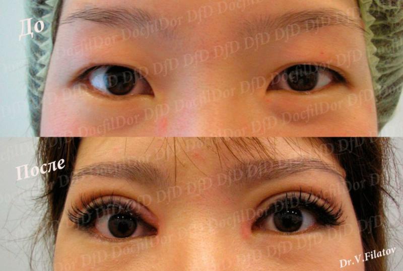 Блефаропластика верхних век азиатских глаз