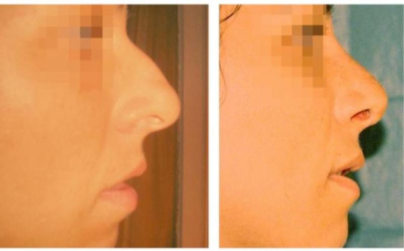 Пластический хирург ринопластика носа