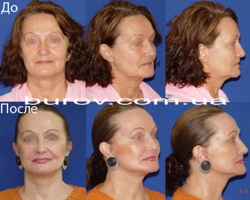 Круговая подтяжка лица пластические хирурги